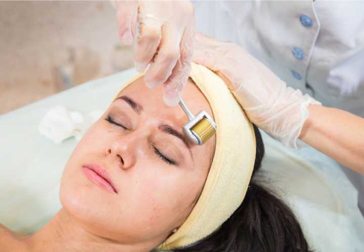Dermaroller Treatment in Meerut