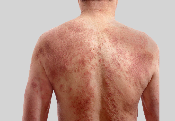 Skin Allergy Eczema Treatment