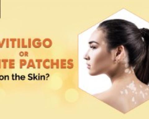 Get Rid of White patches on Skin | Vitiligo Causes & Treatment | Ojasvi Skin Solutions