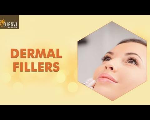 Know everything about Dermal Fillers | Ojasvi Skin Solutions